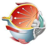 Glaucoma Edison
